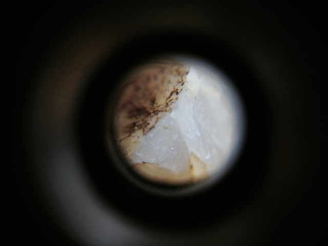 micro scope iPhone - 10